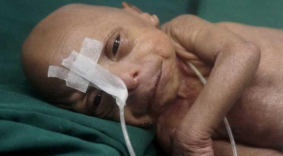 Bangladeş'te Yaşlı Bebek Dünyaya Geldi!