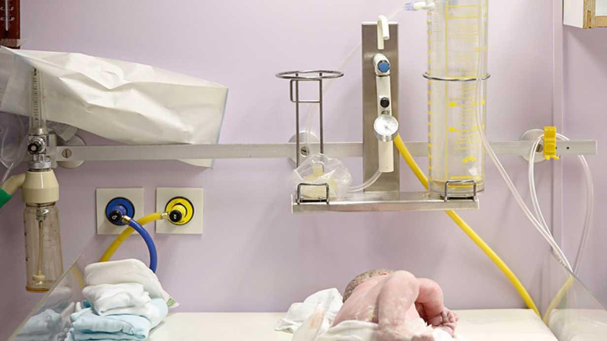 Bebeklerde Doğum Travmasının Nedenleri ve Türleri