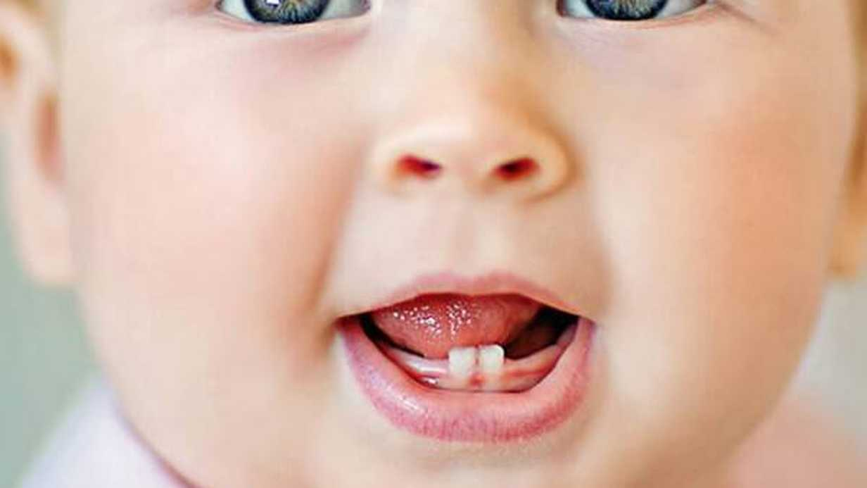 Bebeklerde Diş Çıkarma Sırası Nasıldır?