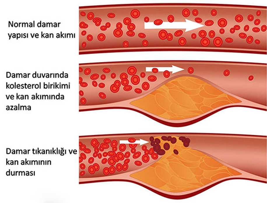Gebelikte Kolesterol Yüksekliği Kırmızı Alarm Demektir!