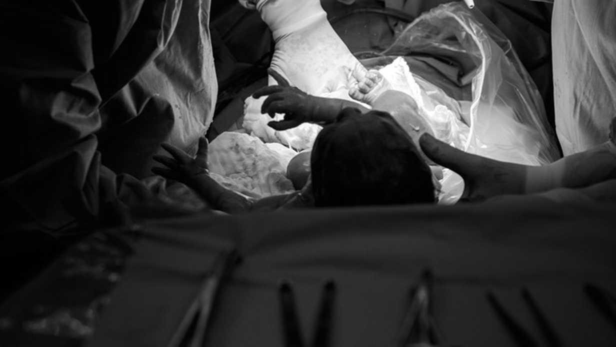 Türkiye Sezaryen Doğumun En Fazla Gerçekleştiği Ülke Oldu