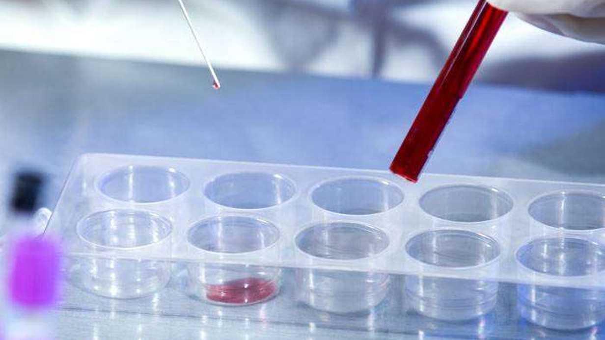 HIV/AIDS Testi Nedir?