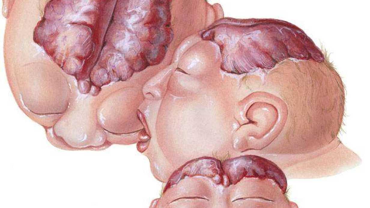 Nöral Tüp Defekti (Kusuru) Nedir?