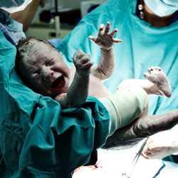 10 Soruda Sezaryen Doğum